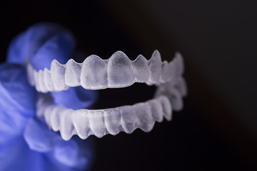 Require Teeth Alignment? Choose the Invisible Braces - Business Guide Ottawa