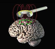 Transcranial magnetic stimulation.jpg
