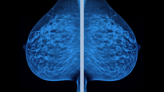What If Everything Your Doctors Told You About Breast Cancer Was Wrong?