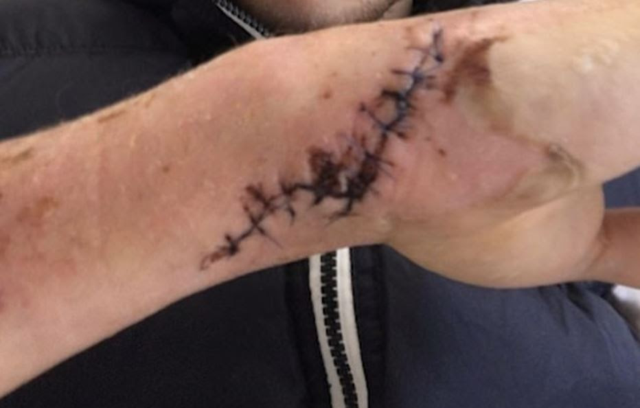 This was one of the injuries Alex sustained after being stabbed with a bread knife. Credit: BBC Three