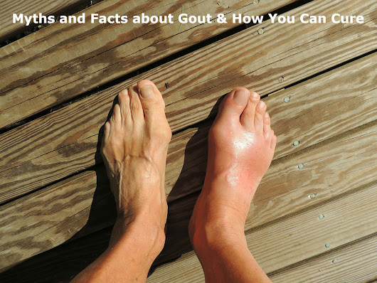 Myths and Facts about Gout & How You Can Cure