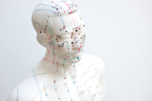 Acupuncture: How Can it Benefit Your Workplace? - HR Aspects Magazine