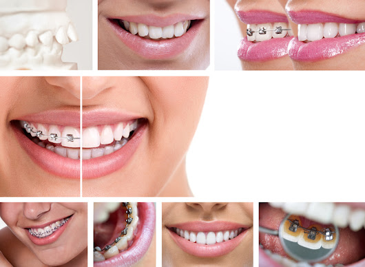 Know Your Orthodontic Options - Belmar Orthodontics