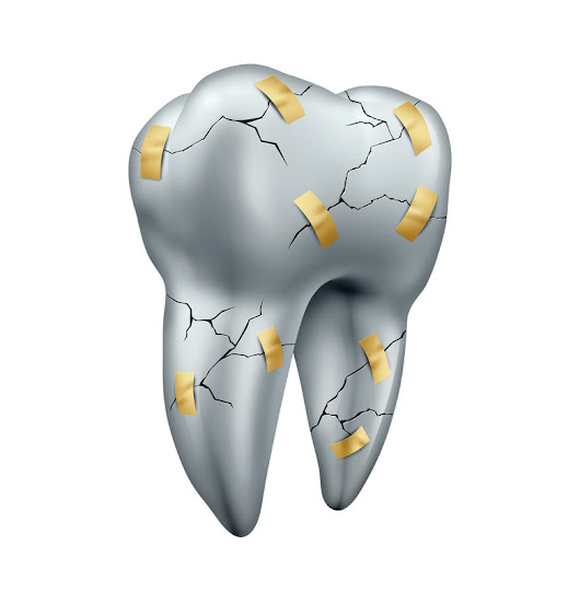 Cincinnati Dental Crowns - Malavich Family Dental Provides Tooth Crowns Services
