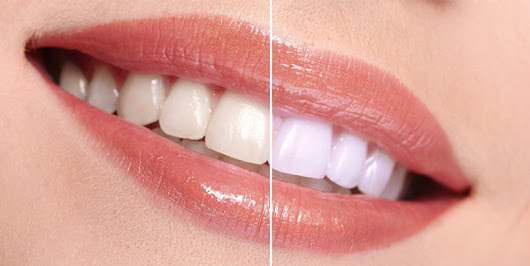 Cosmetic Dentistry - Weston Dental Office