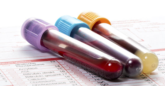 One blood test might be enough to diagnose diabetes, study says - CBS News