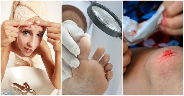 5 домашних рецептов для наружного применения мёда. Скорая помощь для кожи.
