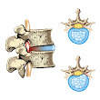 Problems with spinal discs - Well Adjusted Health