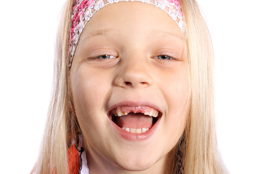How Long Does It Take For Adult Teeth To Come In After A Baby Tooth