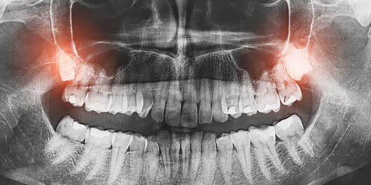 What to Expect Before, During, and After Wisdom Teeth Removal