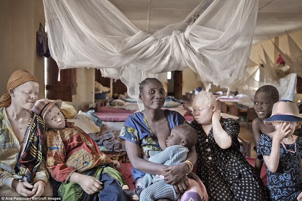 The Tanzanian government set up special protective centres for people with albinism after many had to flee their homes from traffickers. Non-albinos also live there, many of whom fled villages with albino family members