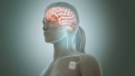 Vagus Nerve Stimulation Boosts Post-Stroke Motor Skill Recovery