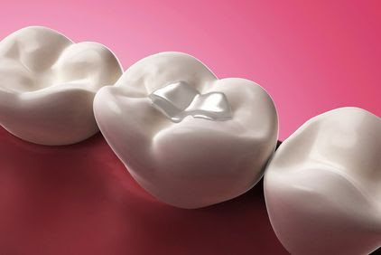 Dental Procedures - Newport, TN - Morristown, TN - Sevierville, TN