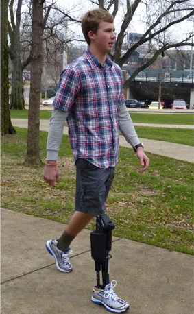A man walking with a robotic prosthetic