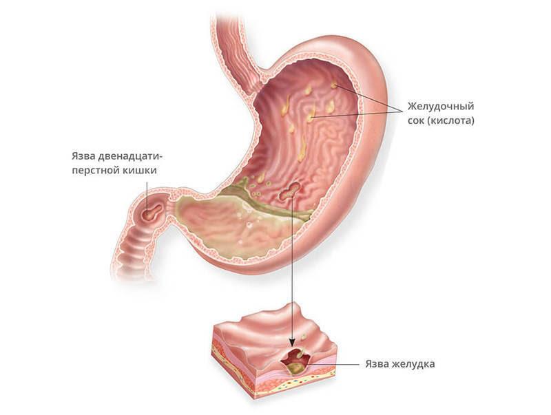 Лечение  по методу Марвы Оганян язвы желудка