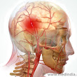 Stent Thrombectomy - Global 'Breakthrough' in Stroke Treatment - Health News - Anand Hospital