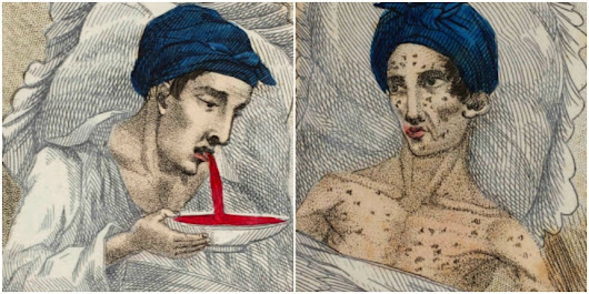 Dead at 17: 'The Fatal Consequences of Masturbation'—a handy guide from 1830