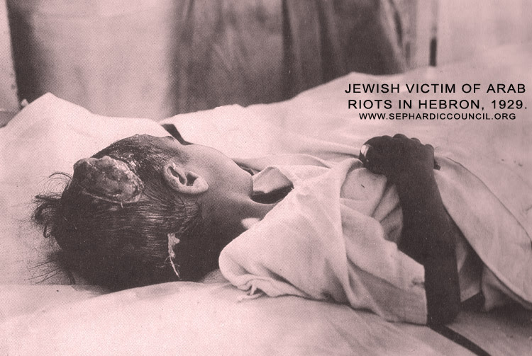 File:Jewish child victim of Arab riots in Hebron, 1929.jpg