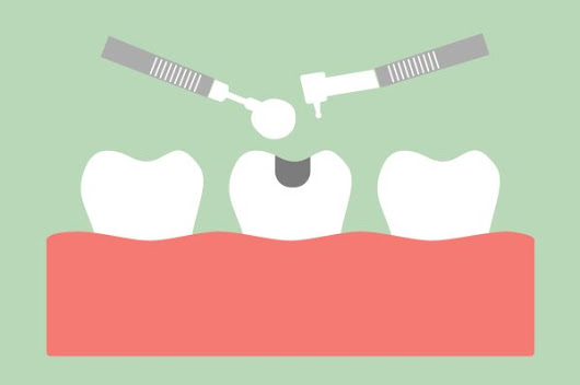 Dental Fillings: What is the Difference Between an Amalgam Filling and a Mercury Filling?