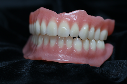 Digital Denture Prosthesis - Stewart Dental Lab