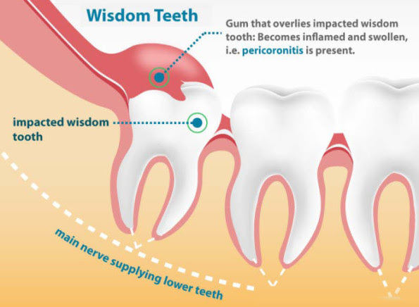 Wisdom Teeth Removal Cost Without Insurance Teethwalls