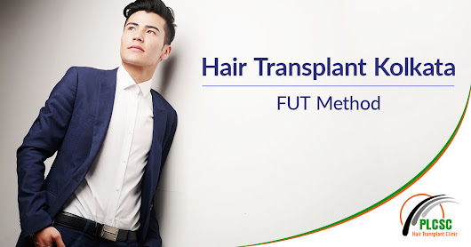 Hair Transplant is Just a Permanent Way to Get the Dense Hair Back