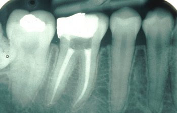 Dysart Dental Services Root Canals