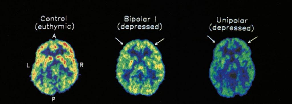 DBSA San Gabriel Valley - Depression and Bipolar Support ...