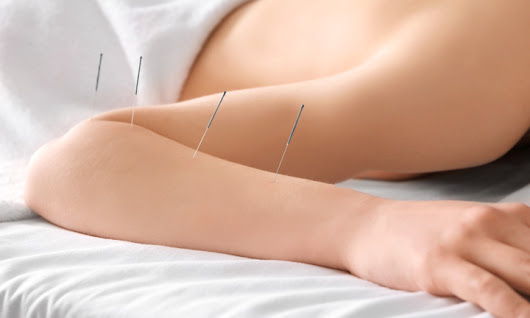 Acupuncture Found Effective For Stroke Paralysis Recovery
