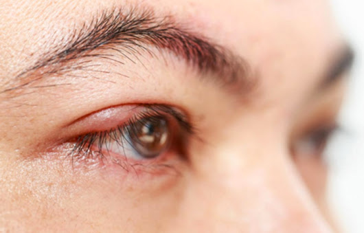 What is a Stye? - Westside Eye Clinic
