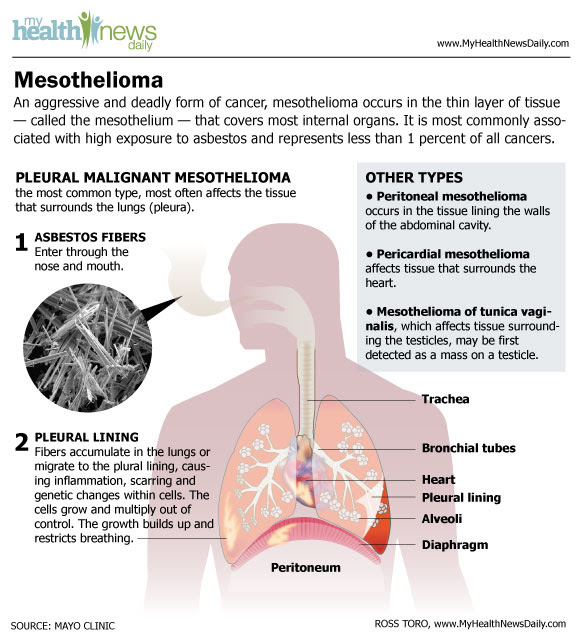 Mesothelioma Infographic  Symptoms and Asbestos Cancer Treatment