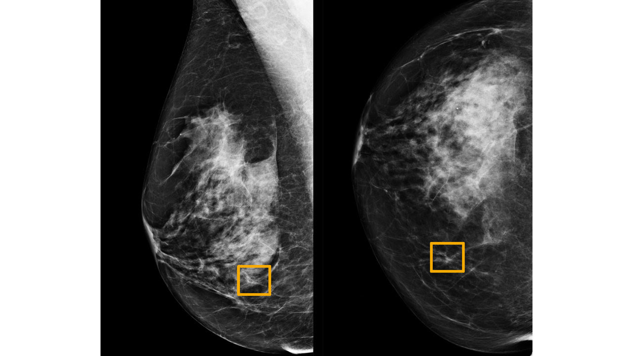 The yellow box indicates where cancer was spotted in the mammogram by AI, which radiologists failed to detect. Image: Northwestern University