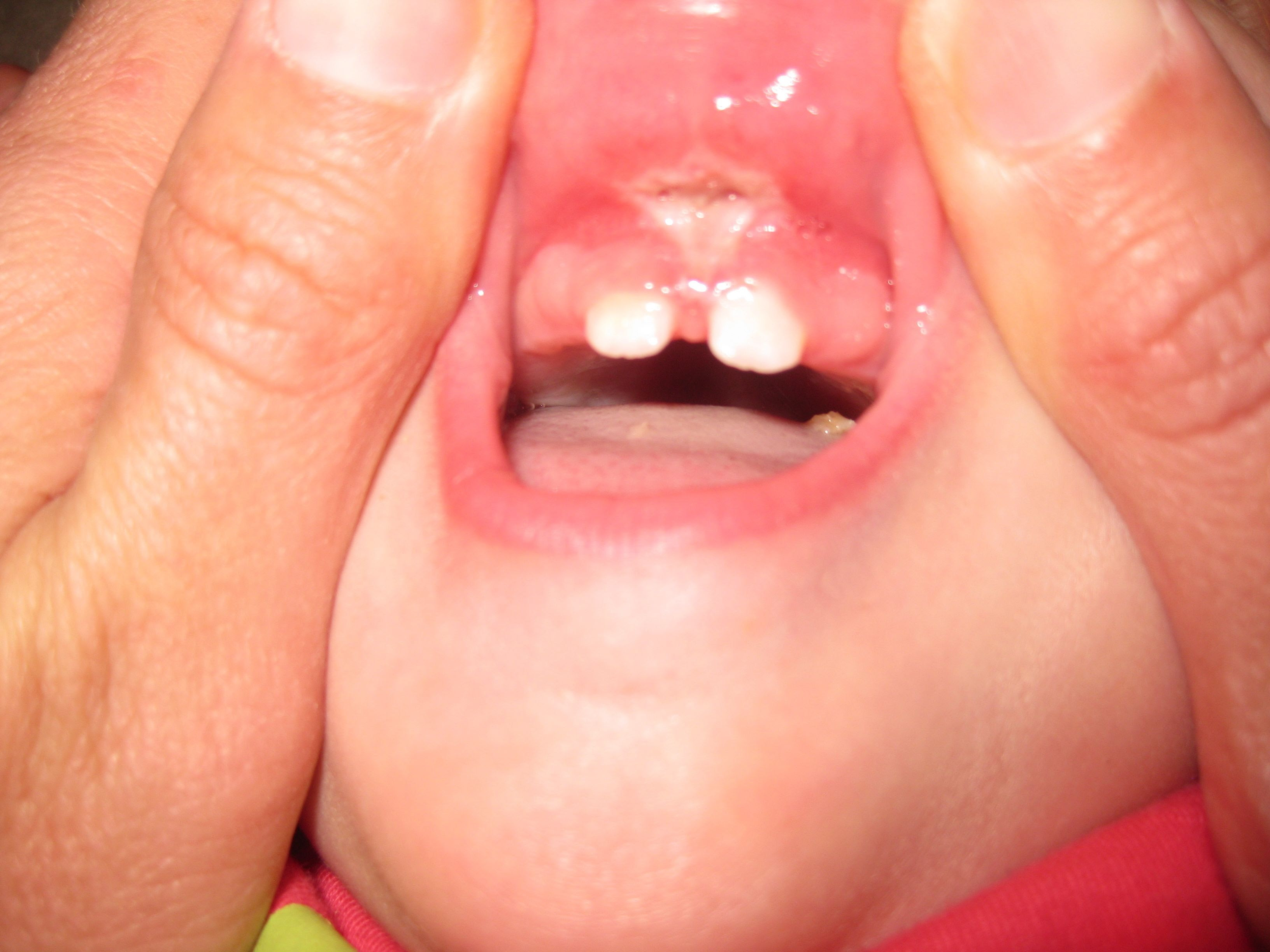 What To Expect After Tongue Tie And Lip Tie Release