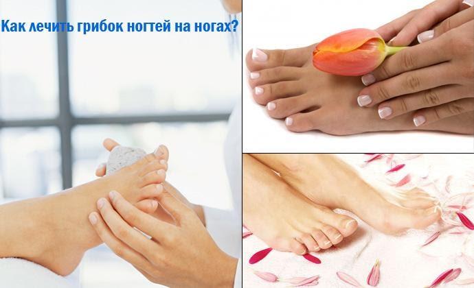 Как вылечить лимфоузлы на ноге