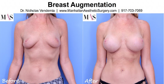 Widely spaced nipples and breast augmentation.