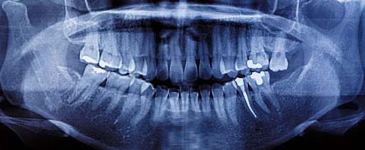 Tooth Wear: Abrasion, Attrition, Abfraction, and Erosion | King Dental