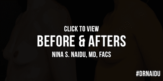 Breast Augmentation Brooklyn - Dr. Nina S. Naidu - NYC Plastic Surgeon