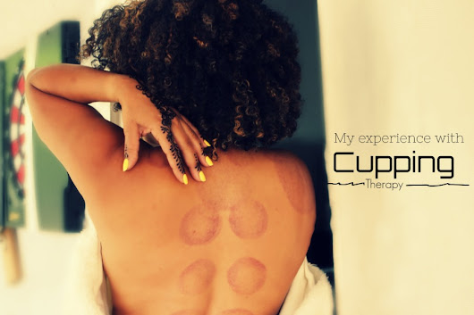 My Experience With Cupping For Lower Back Pain - DailyCurlz