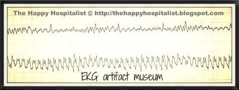 EKG artifact museum photo