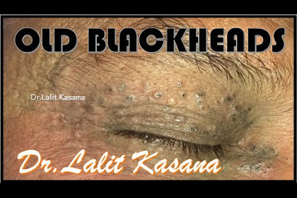 REMOVAL OF 50 YEARS OLD BLACKHEADS