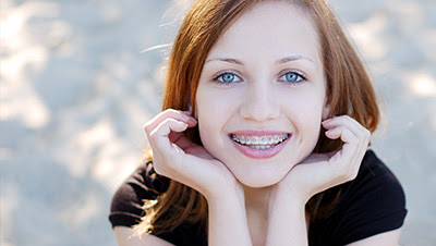 Get Your Braces in Katy - Grand Smiles Dental