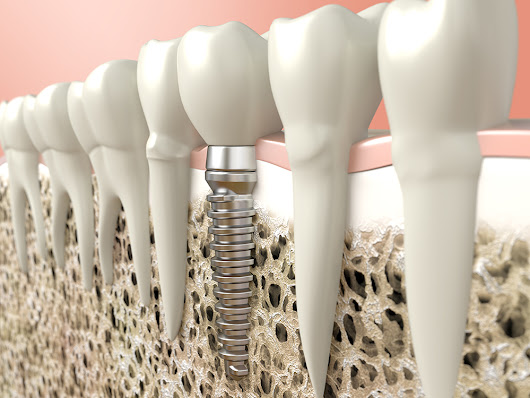 Dental Lasers for Successful Implant Placement