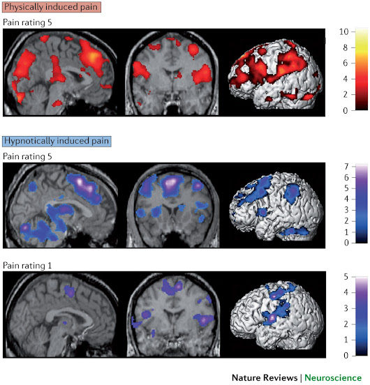 fMRI brain scans show marked differences between the Placebo effect and Hypnosis