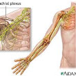 Brachial Plexus-Thoracic Outlet Syndrome-Remedy