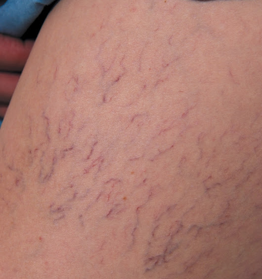 Varicose veins a symptom of serious health issues
