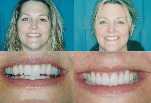 """Before & After Photos - General & Cosmetic Dentistry Lincoln Park & Lakeview, Chicago, IL"