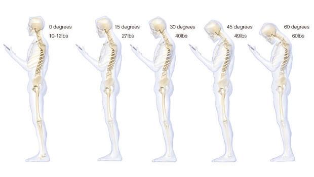 bad-posture-620w.jpg