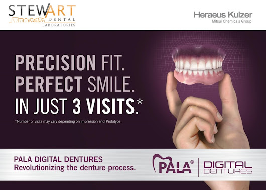 Digital Dentures - Stewart Dental Lab