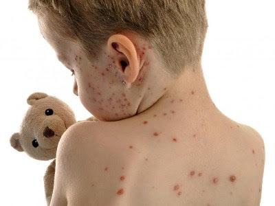 As manchas na pele são comuns e podem ser causadas por diferentes fatores