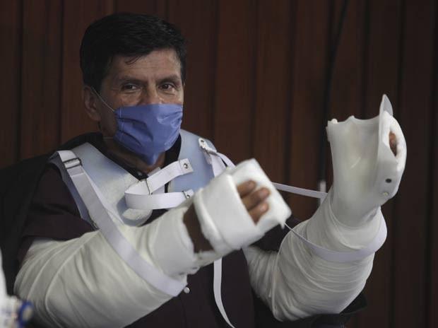 [Imagem: mexico-arms-transplan_fran-.jpg]